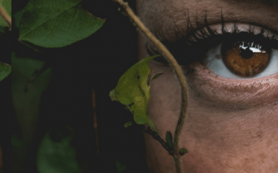 Freckles, Moles and More – A Guide to Beauty Marks and Hyperpigmentation